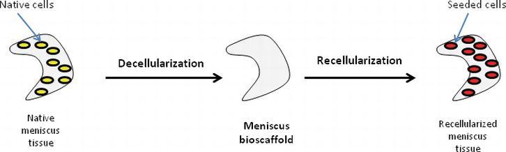 Bio-Engineered Meniscus for Tissue Engineering | IntechOpen