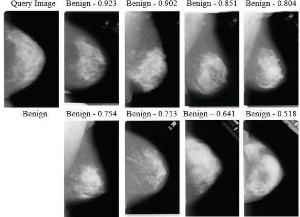 A Decision Support System Dss For Breast Cancer Detection Based