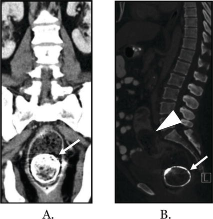 Imaging of Constipation and Its Complications   IntechOpen