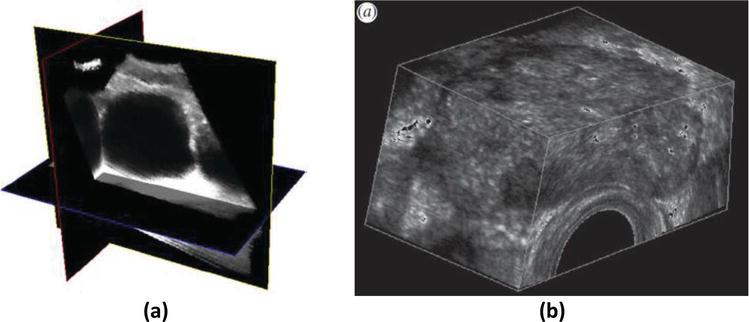 A Survey on 3D Ultrasound Reconstruction Techniques | IntechOpen