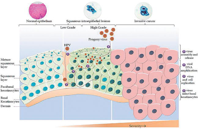 Recent Advances in Human Papillomavirus Infection and Management