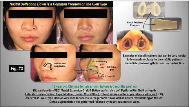 Cleft Lip and Palate Patient Rhinoplasty | IntechOpen