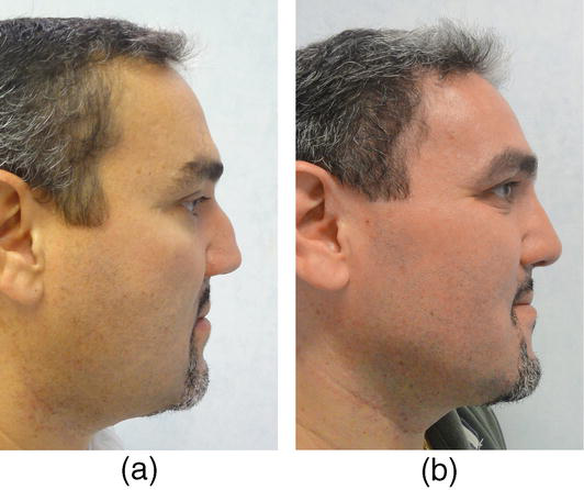 Saddle Nose: A Systematic Approach | IntechOpen