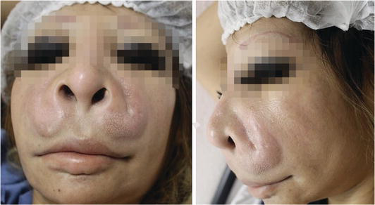 Perioperative Complications in Plastic Surgery | IntechOpen