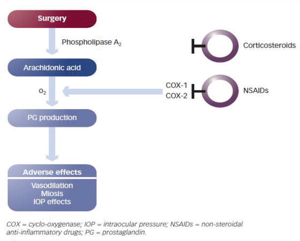 Topical Nsaids In Prevention Of Postcataract Macular Edema