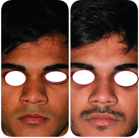 Learning Curve and Septorhinoplasty   IntechOpen