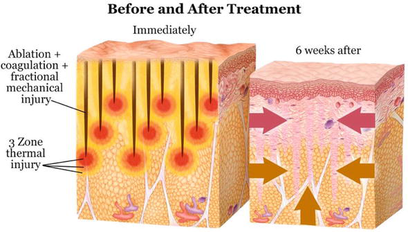 BodyTite®: The Science and Art of Radiofrequency Assisted