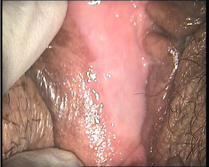 painful clitoris for three weeks