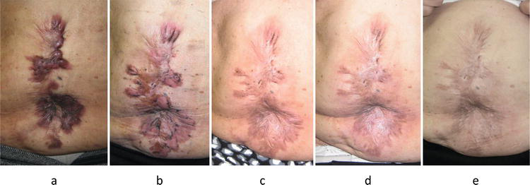 Keloids And Hypertrophic Scars Can Now Be Treated Completely By Multimodal Therapy Including Surgery Followed By Radiation And Corticosteroid Tape Plaster Intechopen