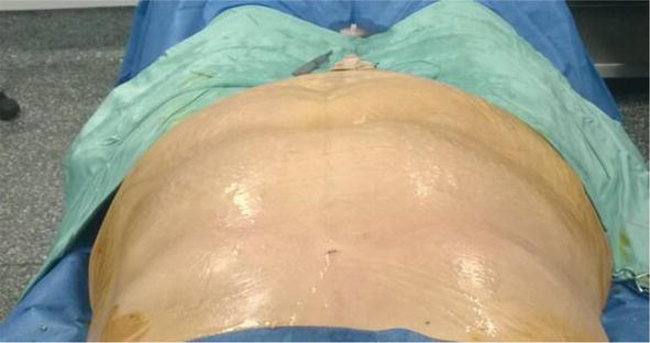 Anesthesia Management for Large-Volume Liposuction | IntechOpen