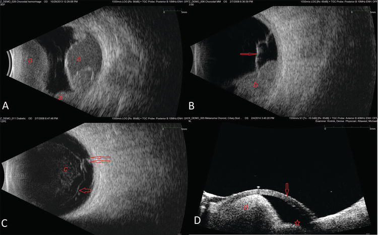 A Brief Overview of Ophthalmic Ultrasound Imaging   IntechOpen