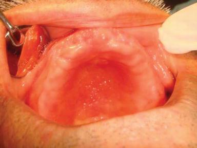 Oral Mucosal Trauma and Injuries | IntechOpen