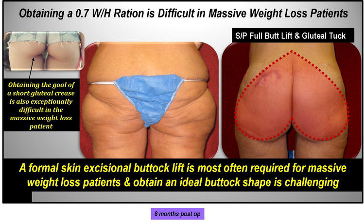 238ba5cd1 Figure 7. Massive weight loss patients often require formal skin excision buttock  lifts plus augmentation.