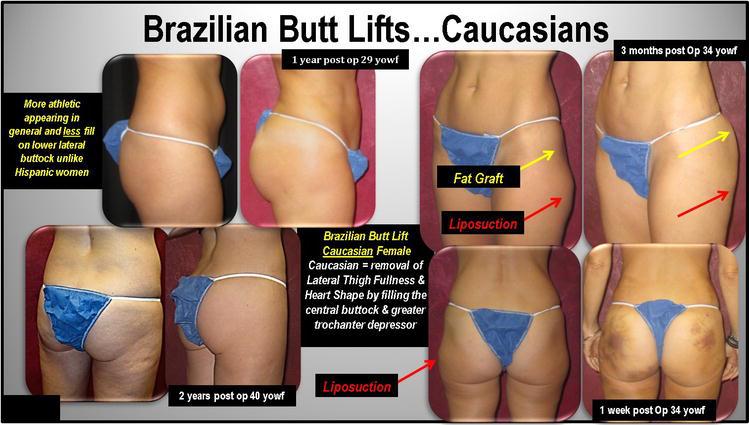 Brazilian butt lift birmingham, al