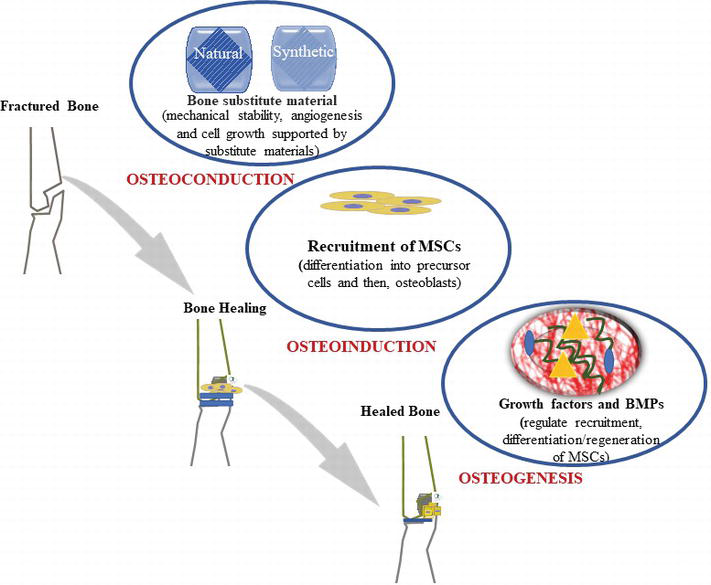 Application of Bone Substitutes and Its Future Prospective in
