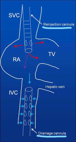 Echocardiography Evaluation In Ecmo Patients