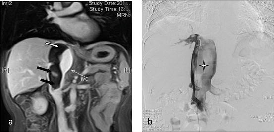 Venous Interventions: From Lower-Limb Deep Vein Thrombosis