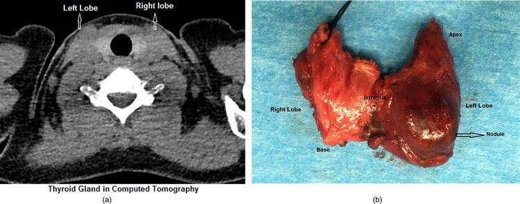 Thyroid Anatomy Intechopen