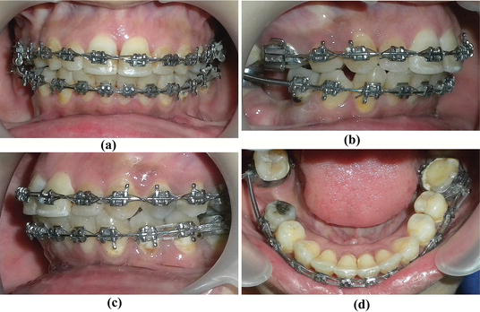 Orthodontic Management Of Residual Spaces Of Missing Molars Decision Factors Intechopen