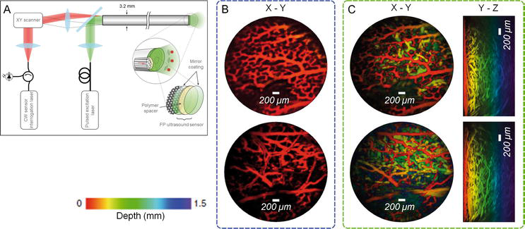 Photoacoustic Imaging in Gastroenterology: Advances and Needs