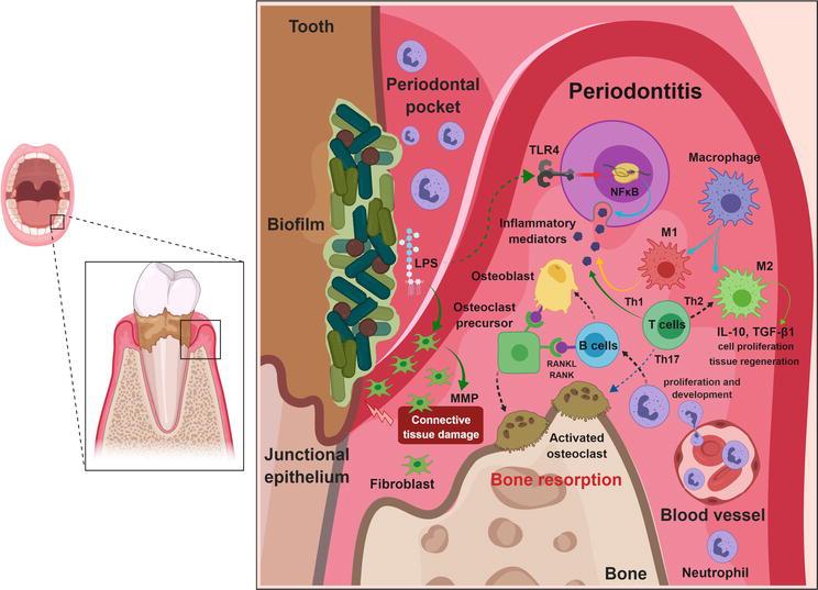 Pathogenesis of Periodontal Disease   IntechOpen