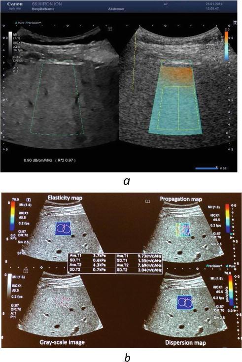 Quantification of Liver Steatosis   IntechOpen