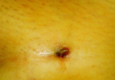 Endometriosis of Postoperative Scar | IntechOpen