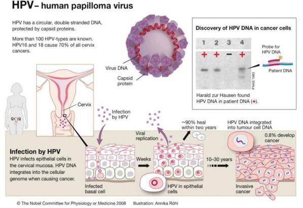 Ce trebuie sa stii despre vaccinarea anti HPV | sanchi.ro